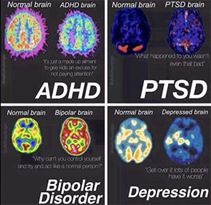 CT scans showing the normal brain vs. ADHD, PTSD, Bipolar Disorder, and Depression.